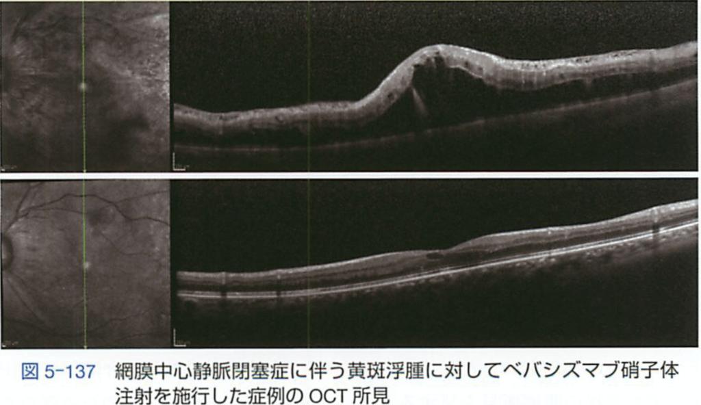 網膜静脈閉塞症に対する抗VEGF抗体注射の効果