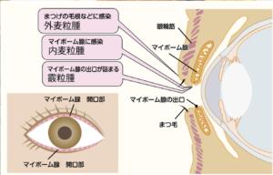 マイボーム腺と麦粒腫