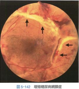 増殖糖尿病網膜症(線維血管組織(矢印))