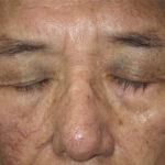 太田母斑と緑内障