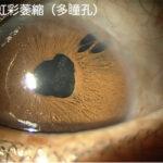 虹彩萎縮(多瞳孔)